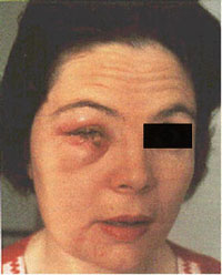 Woman with accidental auto-inoculation of lower eyelid with vaccinia virus.