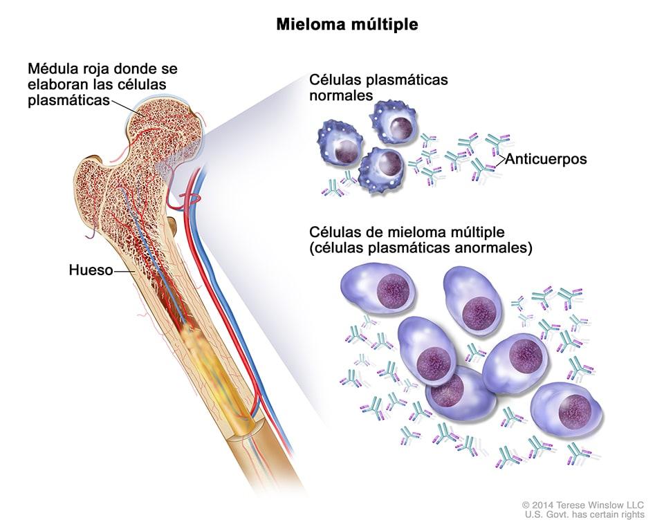CDC - Mieloma