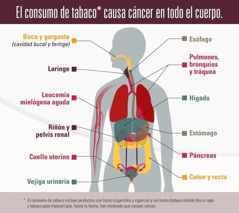 El consumo de tabaco causa cáncer en todo el cuerpo, incluyendo la boca y garganta (cavidad oral y faringe); laringe; esófago; pulmones, bronquios y tráquea; estómago; riñón y pelvis renal; páncreas; hígado; vejiga urinaria; cuello uterino; colon y recto; y leucemia mielógena aguda. El consumo de tabaco incluye productos con humo (cigarrillos y cigarros) y sin humo (tabaco molido fino o rapé y tabaco para mascar) que, hasta la fecha, han mostrado que causan cáncer.