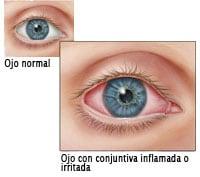 Ilustración de ojo normal y ojo irritado