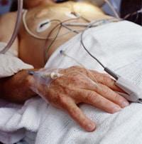Foto de mano de hombre con sonda intravenosa