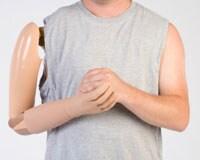 Un hombre con una prótesis de brazo