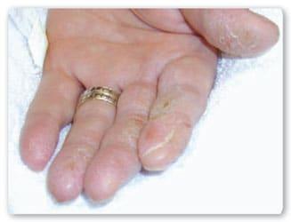 El tratamiento atopicheskogo de la dermatitis en anape