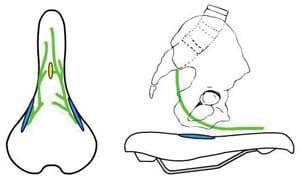 Imagen de nervios y arterias