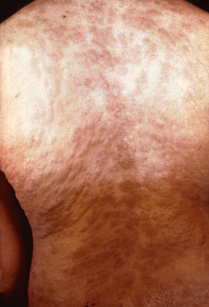 Secondary rash from syphilis on torso.