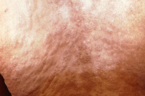 Secondary syphilis rash on the back.
