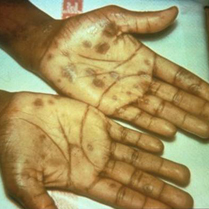 Secondary rash from syphilis on palms of hands.