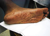 "Secondary stage syphilis sores (lesions) on the bottoms of the feet. Referred to as ""plantar lesions."""