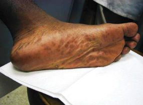 Secondary stage syphilis sores (lesions) on the bottoms of the feet. Referred to as plantar lesions.