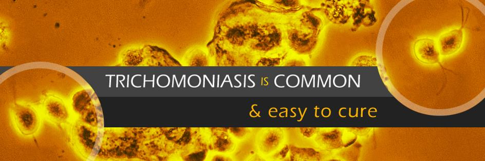 Trichomoniasis is common and easy to cure