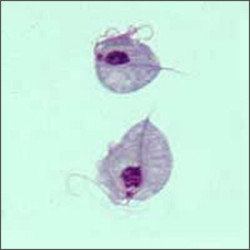Two Trichomonas vaginalis parasites, magnified (seen under a microscope)