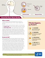 Know the facts about stroke.