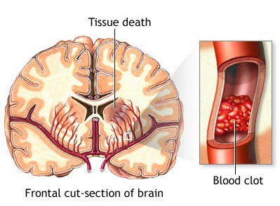 Illustration of tissue death in the frontal cut-section of the brain, as well as a blood clot that caused the damage.