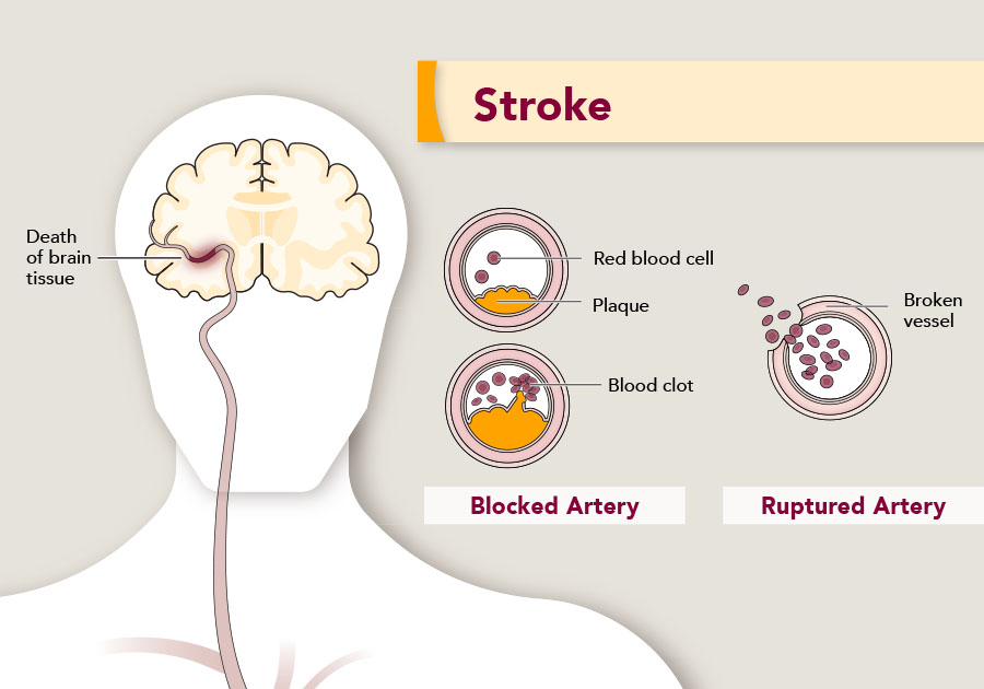 During a stroke, there is death of brain tissue, and a stroke happens in one of two ways: either artery blockage, or artery rupture.