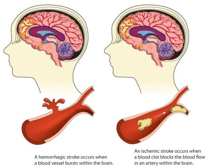 stroke causes symptoms diagnosis and treatment pdf  Types of Stroke | cdc.gov