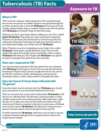 Exposure to TB Fact Sheets PDF file