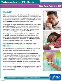 You Can Prevent TB Fact Sheets PDF file