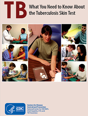 What You Need to Know About the TB Skin Test PDF file