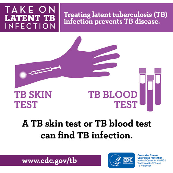 cdc tb infographic   only the tip of the iceberg