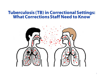 What Corrections Staff Need to Know slide set is designed to be used by health department staff to educate correctional facility staff on TB treatment and control efforts. Please use the facilitator guide to adapt the slide set to meet the needs and regulations of your jurisdiction.