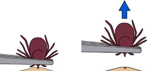 Clipart image showing how to remove an embedded tick with a pair of tweezers.