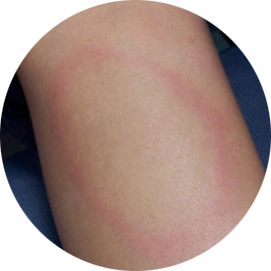 Classic EM—Circular red rash with central clearing that slowly expands