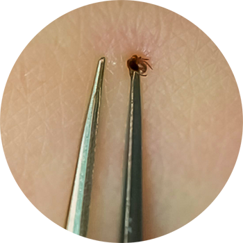 Embedded tick being grasped by a pair of tweezers