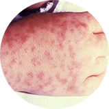 Child's right hand and wrist displaying the characteristic spotted rash of Rocky Mountain spotted fever
