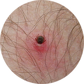 Embedded tick in person's skin with mild allergic reaction