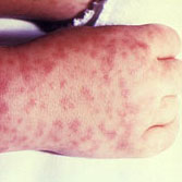 Photo of a persons hand with Rocky Mountain Spotted Fever rash