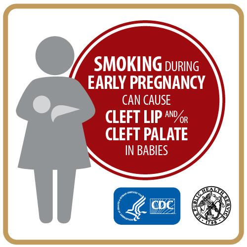 Pregnant Smokers and Cleft Lip and/or Cleft Palates in Babies