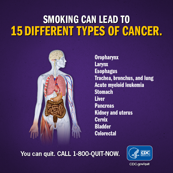Smoking can lead to 15 different types of cancer. Oropharynx; larynx; esophagus; trachea, bronchus, and lung; acute myeloid lukemia; stomach; liver; pancreas; kidney and uterus; cervix; bladder; colorectal. You can Quit. CALL 1-800-QUIT-NOW.