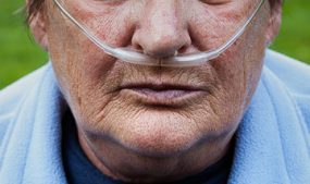 Man with tubes delivering oxygen through his nose