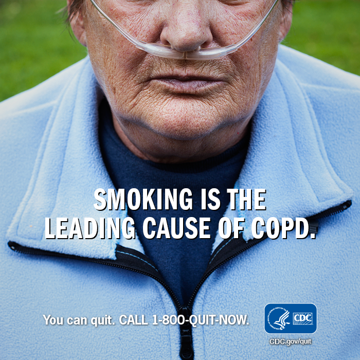 Smoking is the leading cause of COPD. You can quit. CALL 1-800-QUIT-NOW.