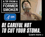A Tip from a Former Smoker: Be careful not to cut your stoma.