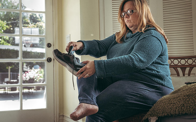 Rebecca C., age 43, had all five toes on her right foot amputated because of Buerger's Disease