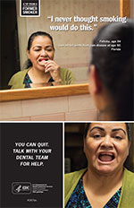 Poster of Felicita who lost teeth due to smoking.