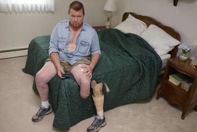 Tips Participant Bill sitting on his bed, getting ready to put on his prosthetic leg.