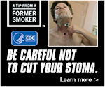 A Tip From a Former Smoker: Be careful not to cut your stoma. Learn more.