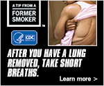 A Tip from a Former Smoker. After you have a lung removed take short breaths. Learn More.