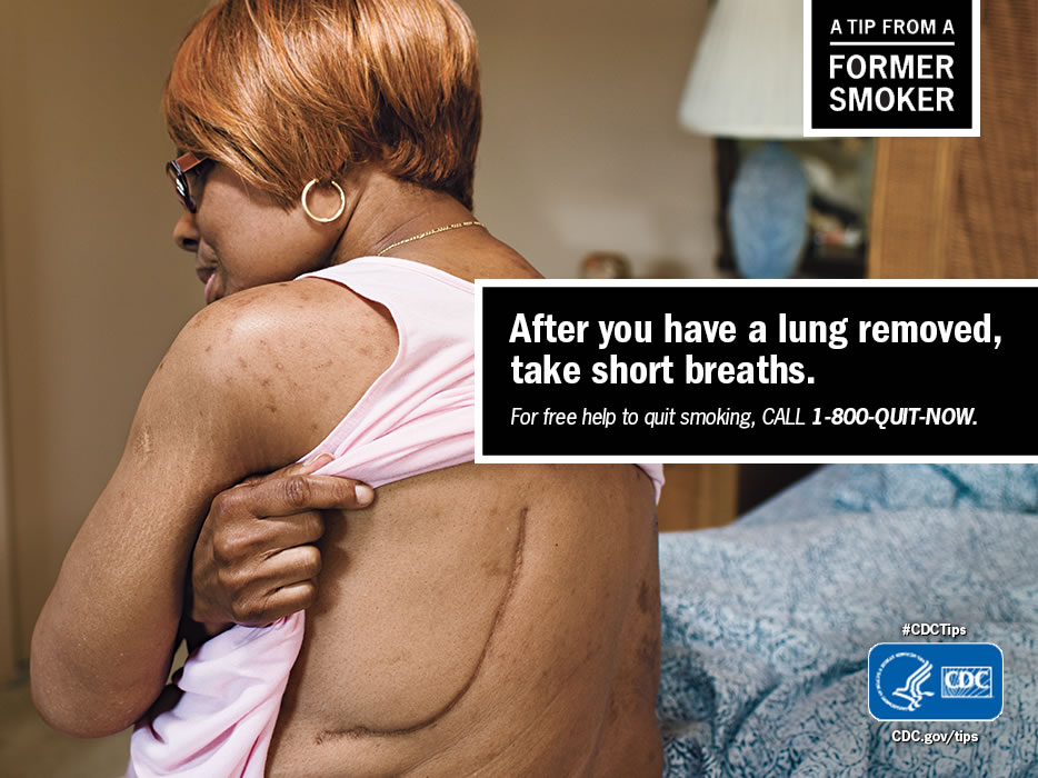 A Tip From a Former Smoker: After you have a lung removed, take short breaths. For free help to quit smoking, call 1-800-QUIT-NOW.