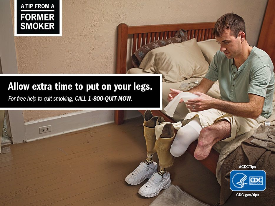 A Tip From a Former Smoker: Allow extra time to put on your legs. For free help to quit smoking, call 1-800-QUIT-NOW.