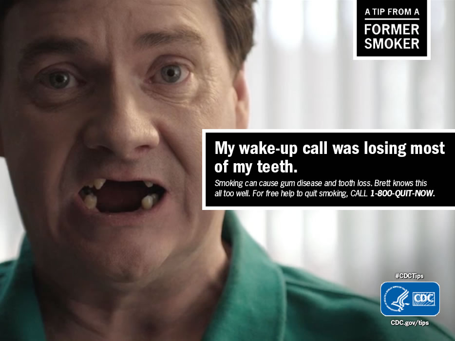 A Tip From a Former Smoker: My wake-up call was losing most of my teeth. For free help to quit smoking, call 1-800-QUIT-NOW.