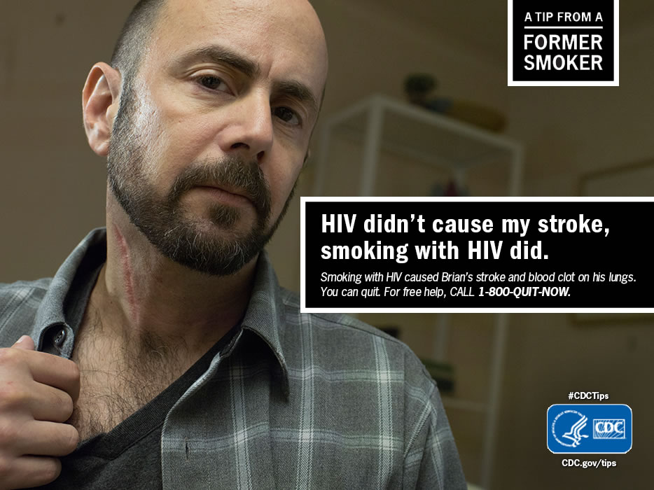 A Tip From a Former Smoker: HIV didn't cause my stroke, smoking with HIV did. For free help to quit smoking, call 1-800-QUIT-NOW.