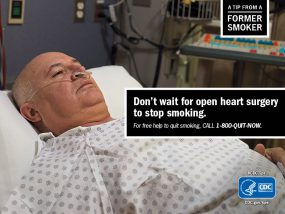 A Tip From a Former Smoker: Don't wait for open heart surgery to stop smoking. For free help to quit smoking, call 1-800-QUIT-NOW.