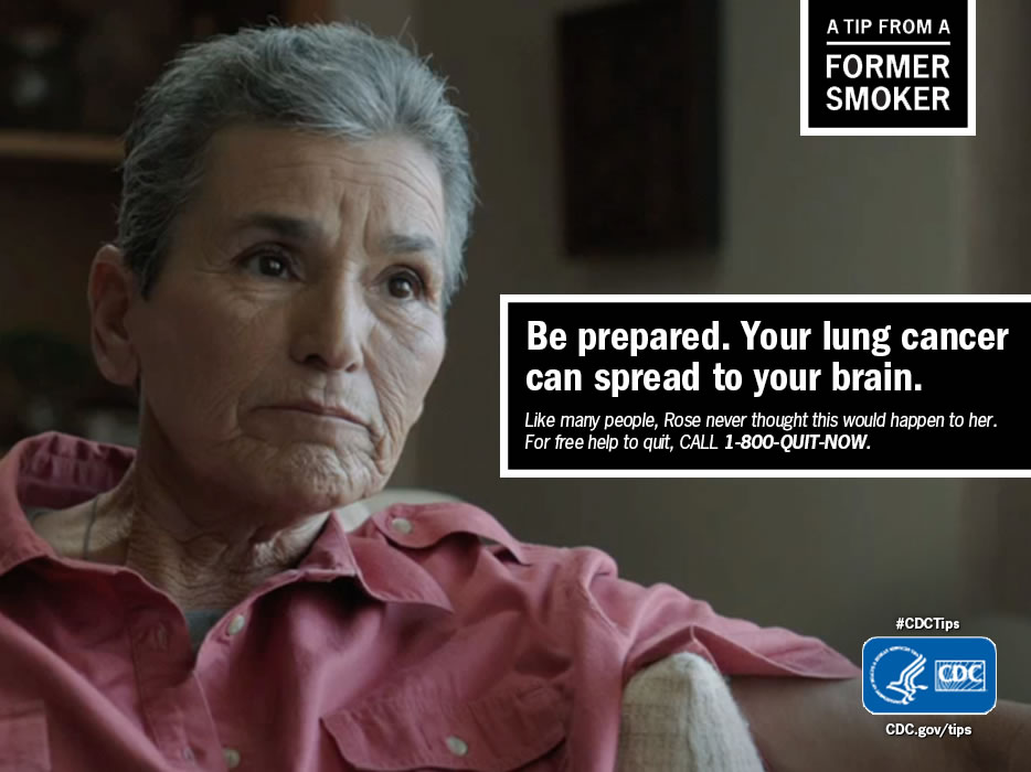 A Tip From a Former Smoker: Be prepared. Your lung cancer can spread to your brain. For free help to quit smoking, call 1-800-QUIT-NOW.