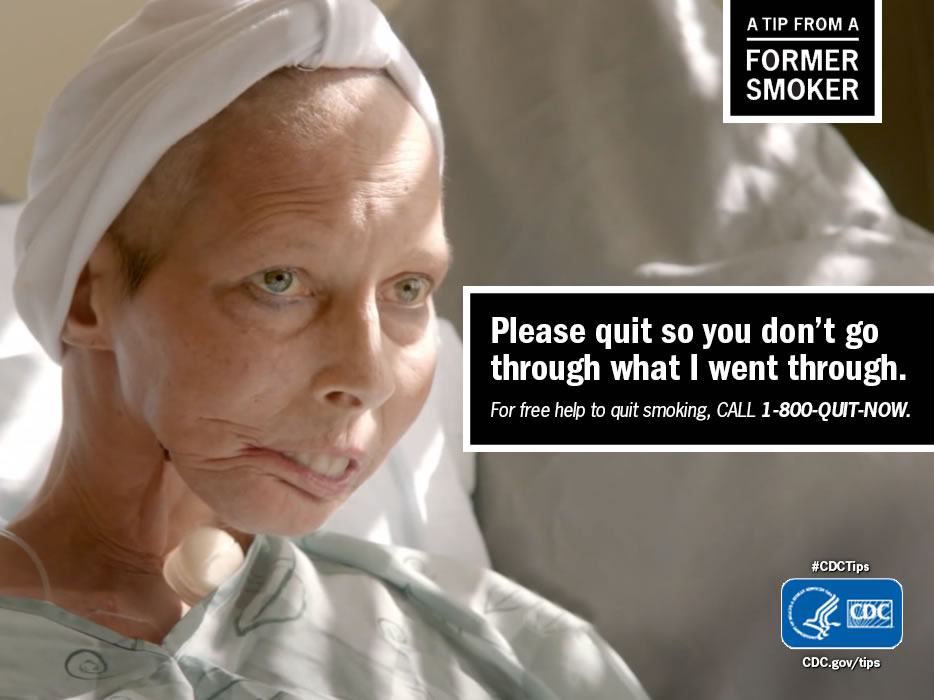 A Tip From a Former Smoker: Please quit so you don't go through what I went through. For free help to quit smoking, call 1-800-QUIT-NOW.