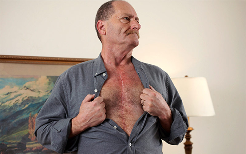 Brian, a Tips Campaign Participant, is standing and opening his button-front shirt to expose his surgery scar, which runs vertically down his chest.