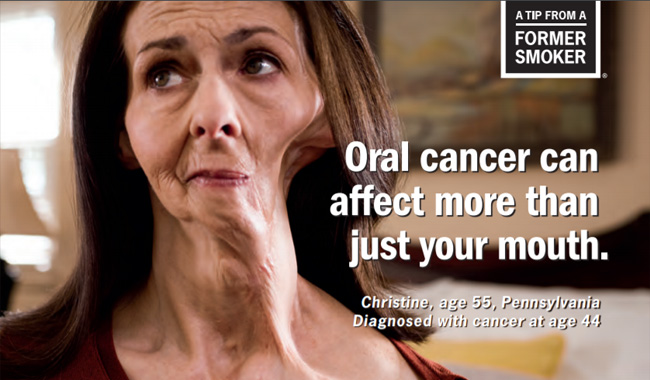 Christine's Tips: Oral Cancer