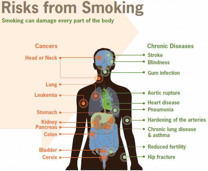 Risks From Smoking: Smoking Can Damage Every Part of the Body